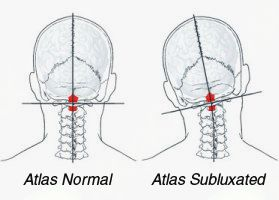 Brezplačni pregledi atlasa