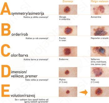 Kožni rak ni samo črna lisa – najpogosteje je trdovratna rana